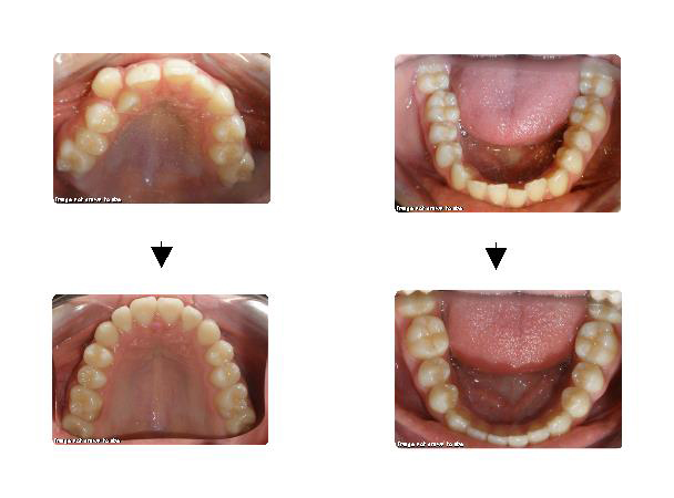 Before & After Orthodontics